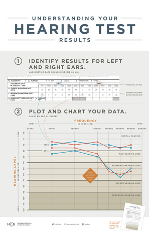 Audiogram Poster - Understanding Your Hearing Test Results poster